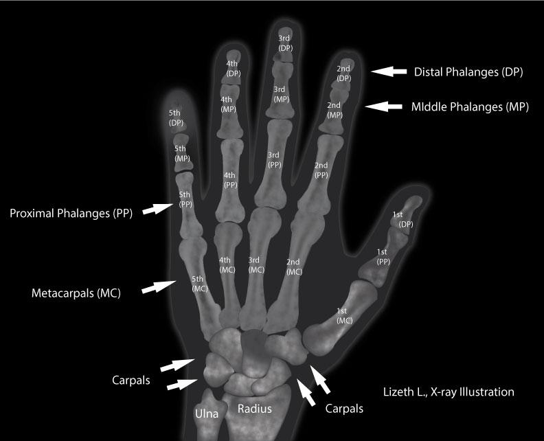 X-ray_Illustration_Lizeth_01